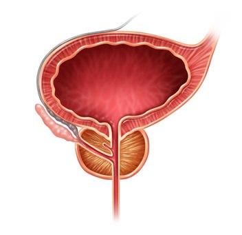 Antígeno Prostático Excesivo: cómo bajarlo con vegetación medicinales